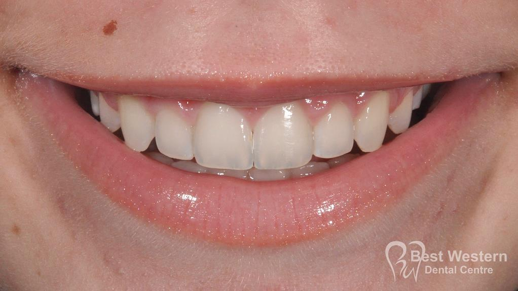 After- Orthodontics-56