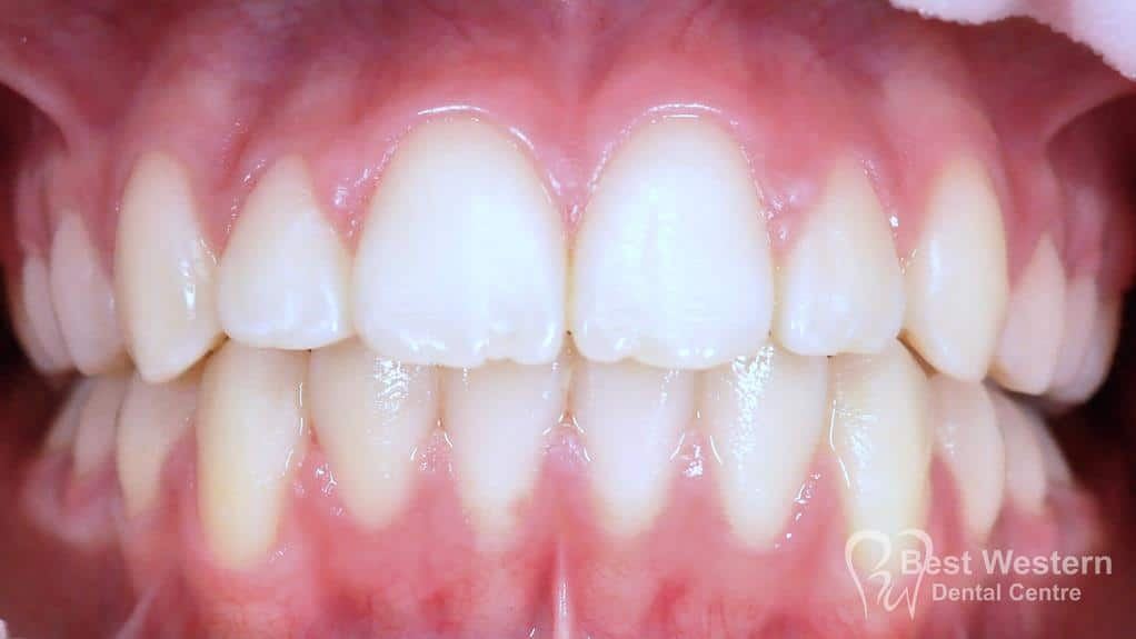 After- Orthodontics-58