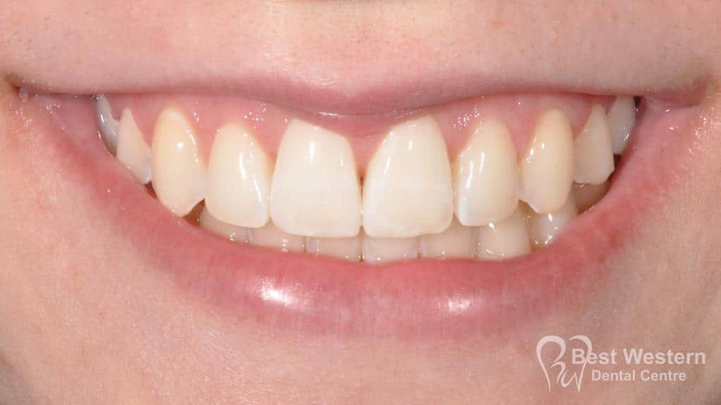 After- Orthodontics-59