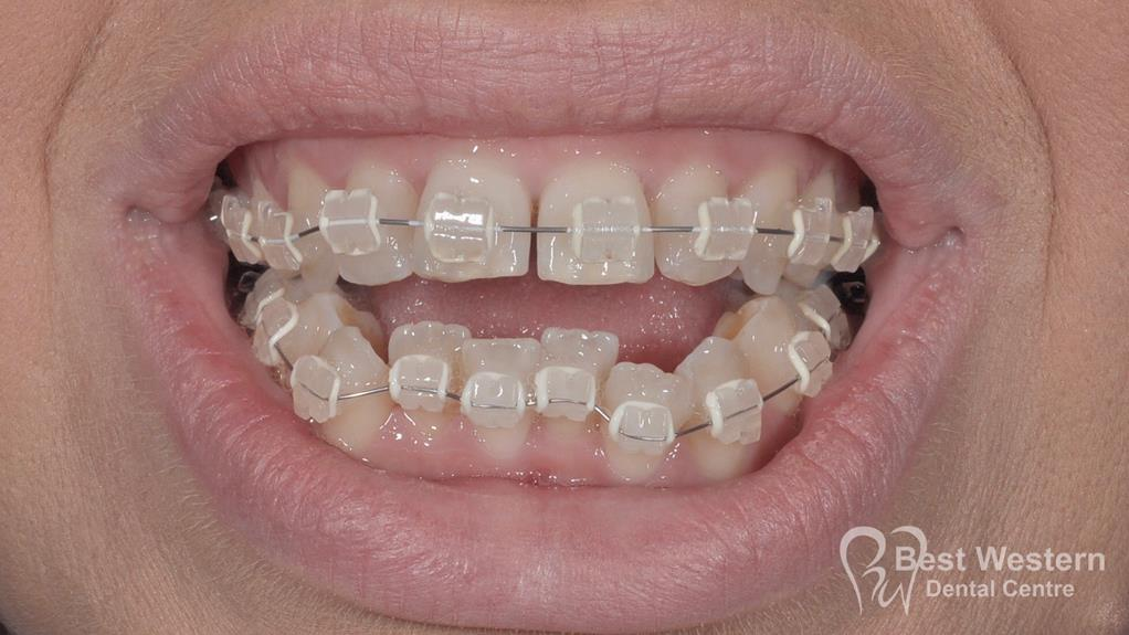 Before- Orthodontics-5