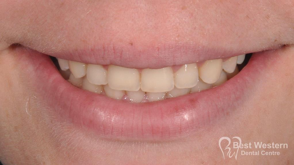 After- Orthodontics-60