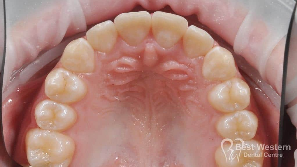 After- Orthodontics-61