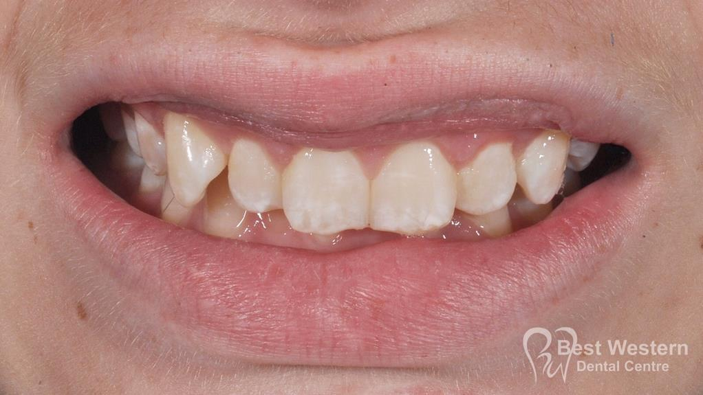Before- Orthodontics-64