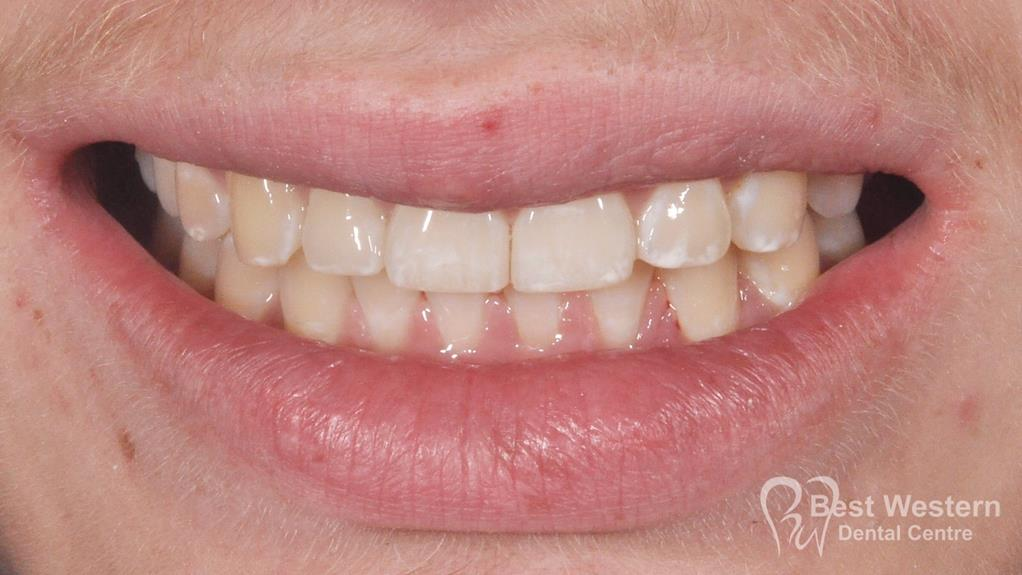 After- Orthodontics-64