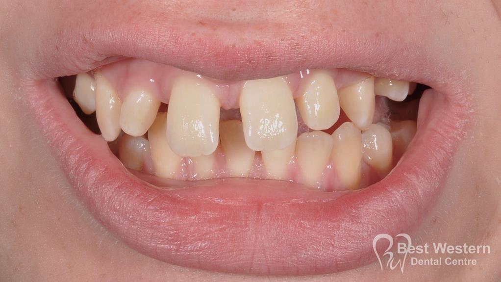 Before-Penrith Orthodontics 6