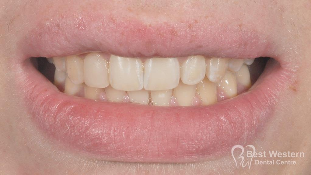 After-Penrith Orthodontics 6