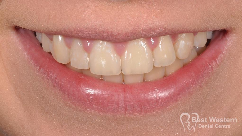 After-Penrith Orthodontics 8