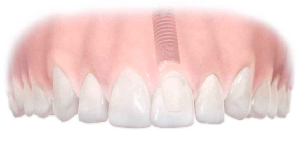Dental Implant - Penrith Implant Dentist
